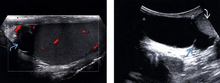 УЗИ с допплерографией: слева стрелкой отмечено клинически незначимое мелкое сперматоцеле, а справа обозначено крестиками крупное сперматоцеле с перегородкой, которое смещает яичко вниз