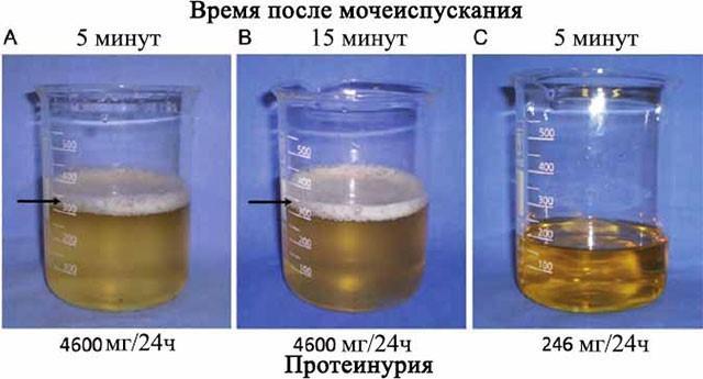 Зависимость стойкости пены от концентрации белка в моче