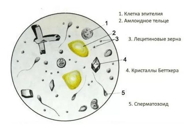 Амилоидные тельца в составе спермы
