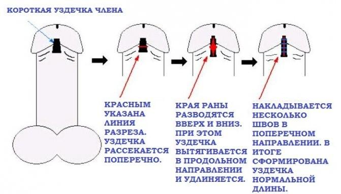 Классическая схема френулопластики