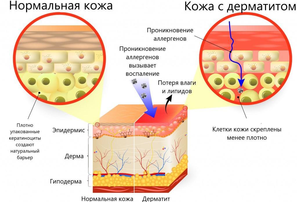 Механизм развития аллергического дерматита