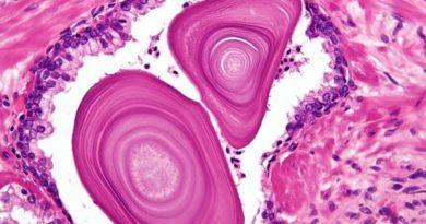 Что нужно знать про амилоидные тельца в секрете простаты и спермограмме