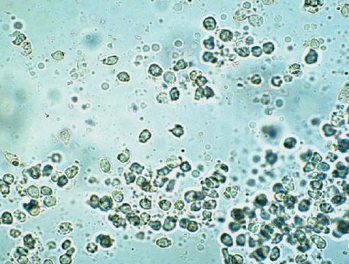 Скопление лейкоцитов в простатическом соке. Фото под микроскопом
