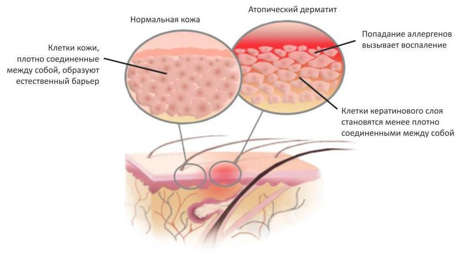 Механизм образования атопического дерматита