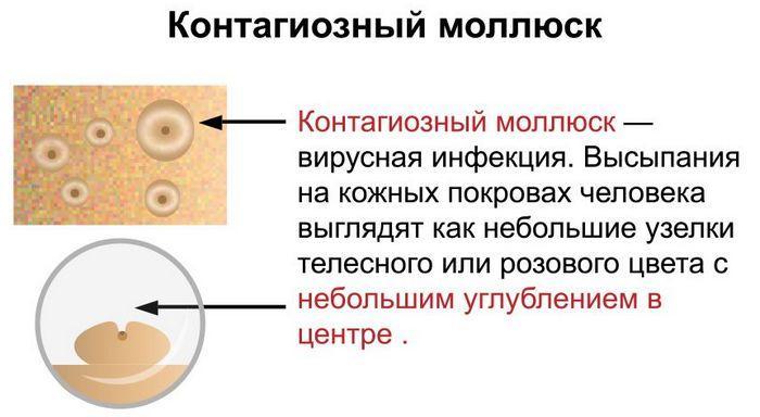 Описание контагиозного моллюска