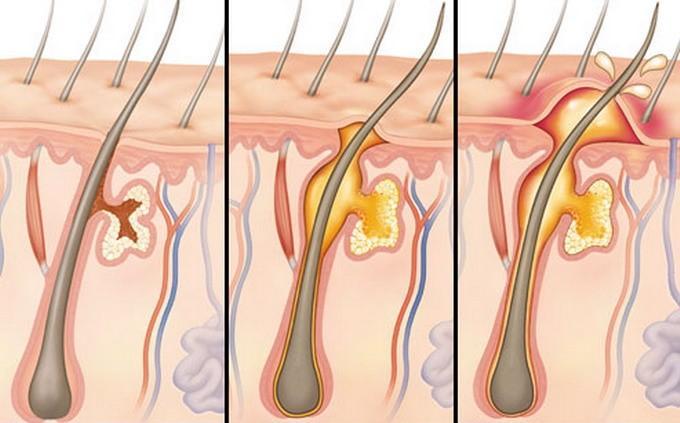 Фазы развития фурункула: инфильтрация, нагноение, прорыв