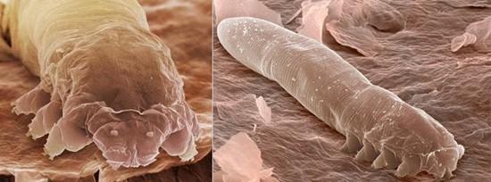 Фото паразита под микроскопом