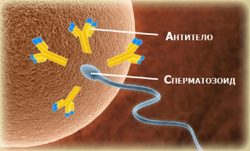 Иммунологическое бесплодие