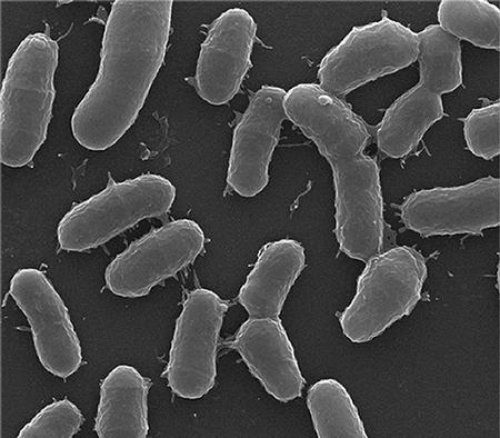 Микроорганизмы Corynebacterium minutissimum под микроскопом