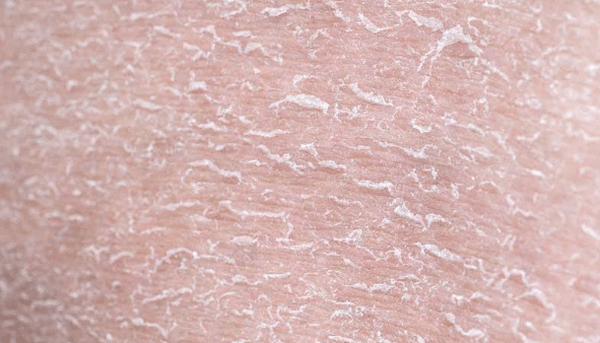 Шелушится кожа