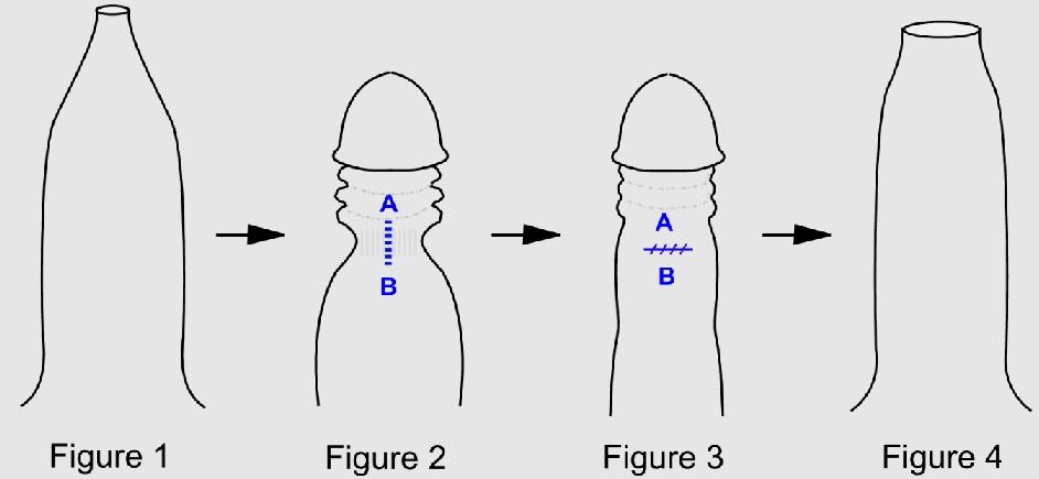 Классическая схема препуциопластики