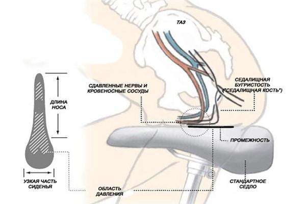 Сдавливание нервов традиционным седлом