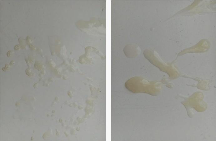 Сперма в виде сгустков
