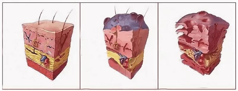 Отмирание тканей при гангрене Фурнье