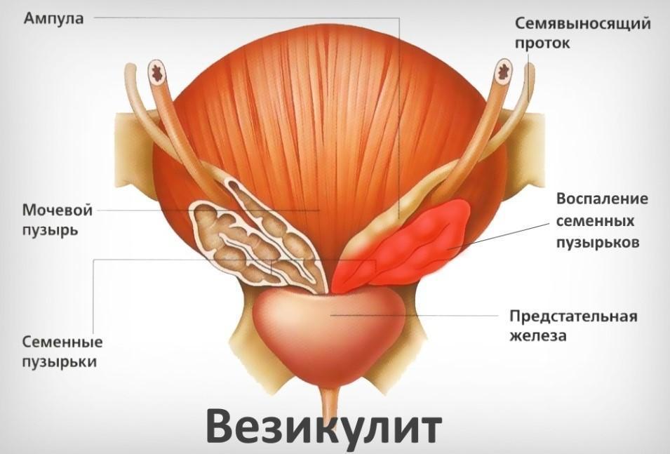 Везикулит у мужчин