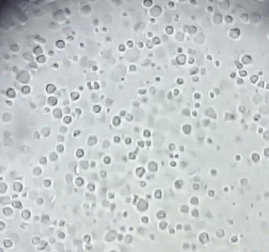 Фото лецитиновых зерен в соке простаты под световым микроскопом (увеличение в 400 раз)