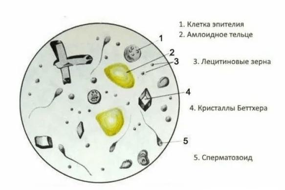 Липоидные зерна в составе спермы